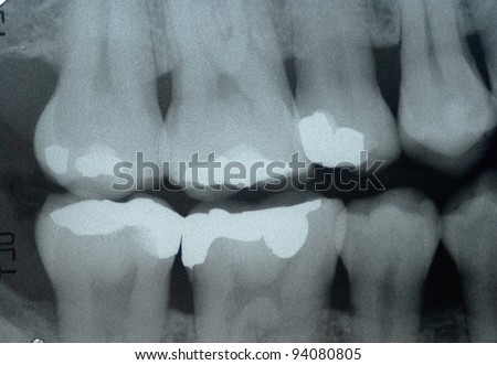 Dental x-ray  ( Bite wing technic ) for check dental caries - stock photo
