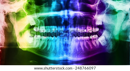 Dental X-Ray Photo Of Human Skull With Teeth - stock photo
