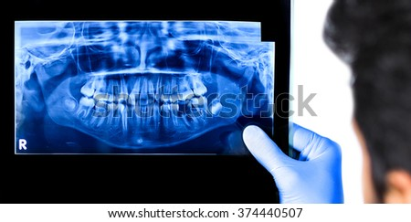 Dentist holding & viewing full mouth X-ray of a patient isolated in white background - stock photo