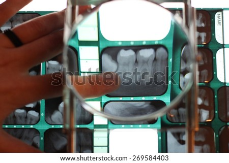 Dentist's hand showing a dental x-ray under a magnifying glass - stock photo