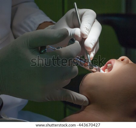 Dentistry. Dentists are using anesthetic injection. Oral Health. - stock photo