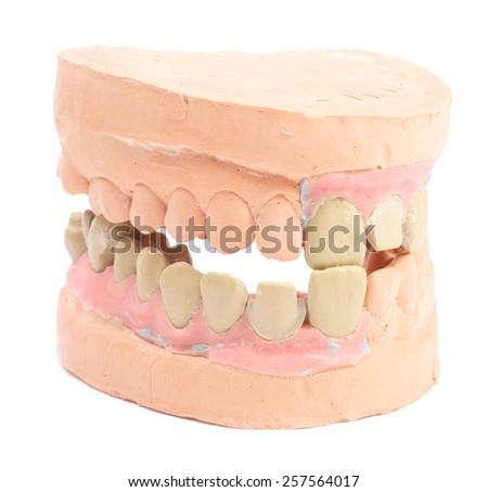 Denture isolated on white - stock photo