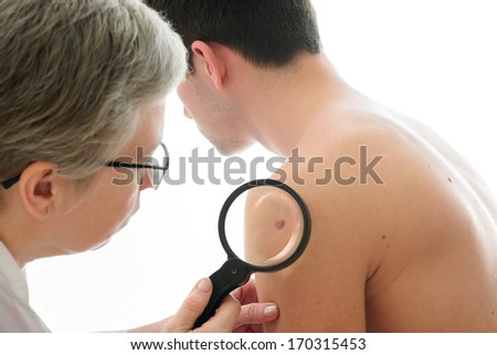 Dermatologist examines a mole of male patient - stock photo