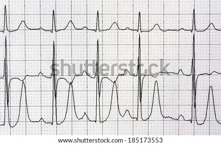 Detail of an electrocardiogram in paper  heart rhythm disease cardiology background - stock photo