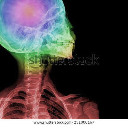 detail of neck x-ray image - stock photo