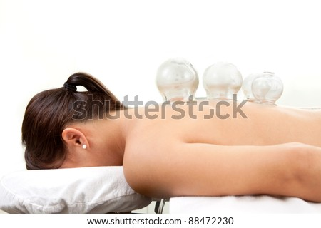Detail of several cups placed on back of female in acupuncture cupping treatment - stock photo