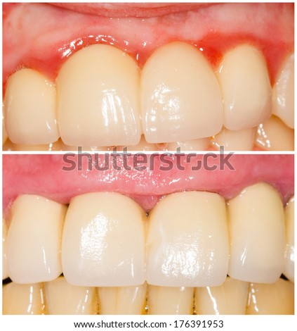Difference of tangent and shoulder teeth buffing for crowns. With and without gums inflammation. - stock photo