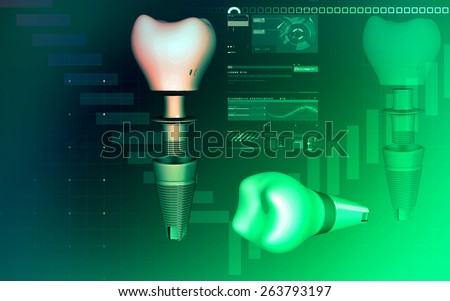 Digital illustration Dental implant in colour background  - stock photo