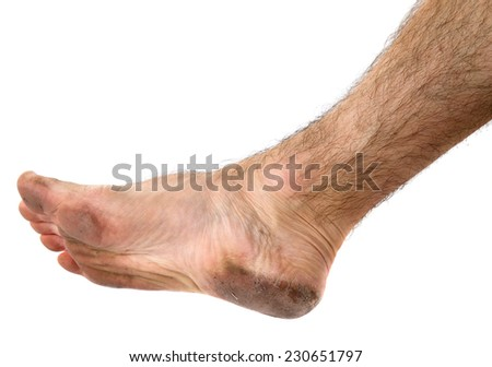 Dirty unhygienic man foot  on white background - stock photo