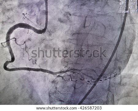 Disease at right coronary artery from x-ray in cardiac catheterization laboratory - stock photo