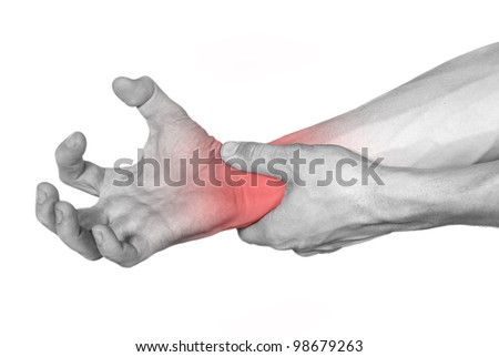 disease of the hands observed - stock photo