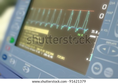 display apparatus for Counterpulsation; - stock photo