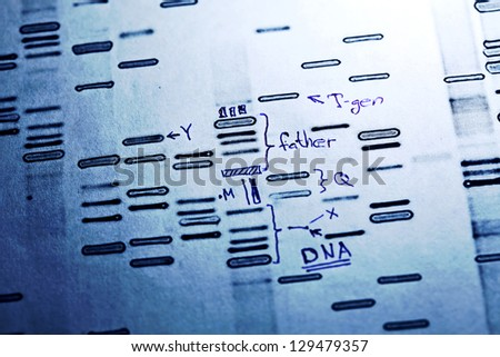 DNA fingerprints data with hand drawn remarks. - stock photo