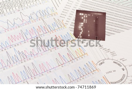 DNA sequence, electrophoresis photo, and a restriction map - stock photo