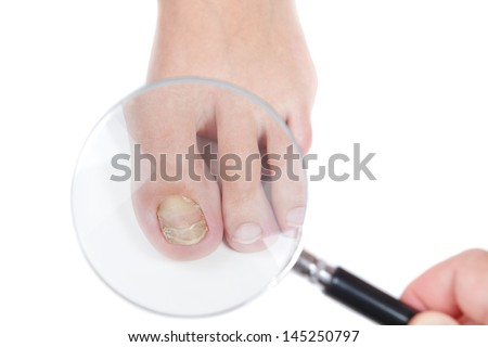 Doctor dermatologist examines the nail on the presence of the fungus, eczema. Close-up. - stock photo