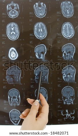 doctor examining a brain cat scan - stock photo