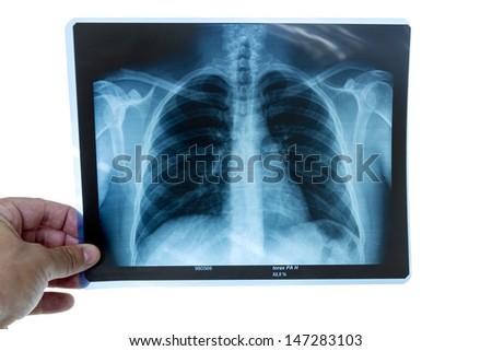 Doctor examining a torax radiography - stock photo