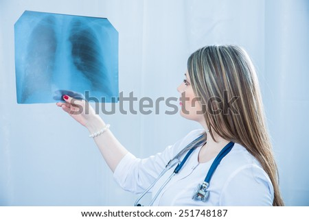 Doctor examining an X-ray light - stock photo
