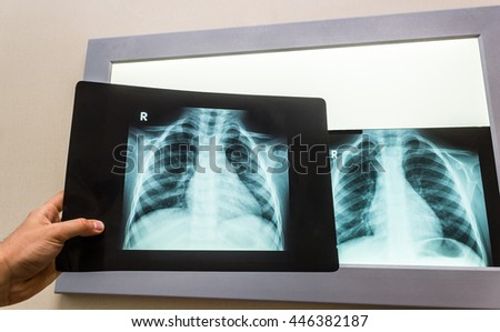 Doctor examining chest x-ray films against white screen - stock photo