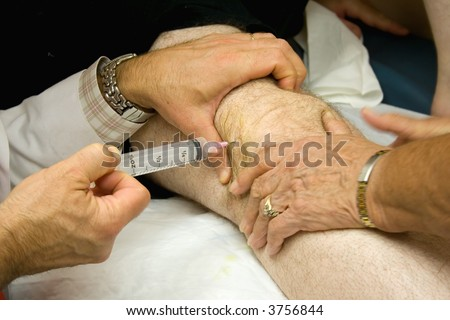 Doctor Giving Injection in the Knee of a Patient - stock photo