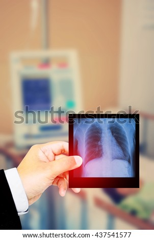 Doctor holding x-ray film for a medical diagnosis in hospital background. - stock photo