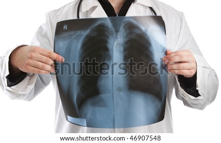 Doctor holding x-ray in front of his chest - stock photo
