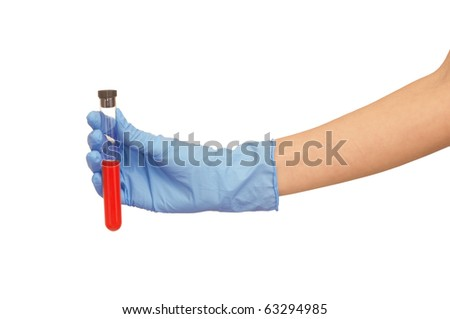 Doctor in blue gloves will be carry out research a samples of bloods at inhabitants of coast on availability of poisoning - stock photo