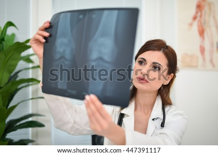 Doctor looking at a radiography - stock photo