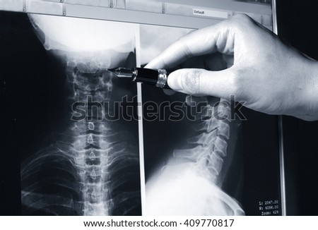 Doctor showing a detail on a x-ray radiography of neck monochrome image      - stock photo