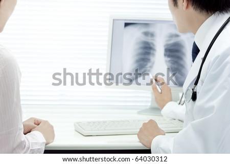 Doctor who analyzes X rays - stock photo