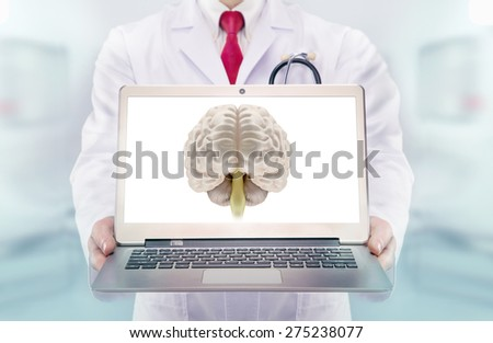 Doctor with stethoscope in a hospital. Brain on the laptop monitor. High resolution.  - stock photo