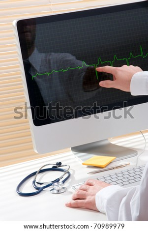 Doctor working with computer and electrocardiogram - stock photo