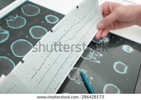 Doctors workplace table with medical documentation - stock photo