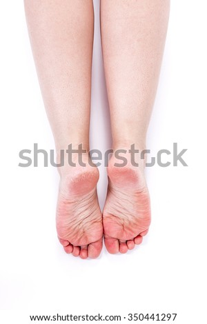 dry dehydrated skin on the heels of female feet with calluses - stock photo