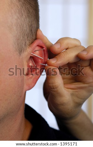 Ear Acupuncture - stock photo