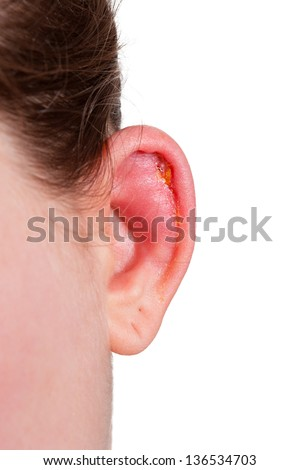 Ear is heavy infected - stock photo
