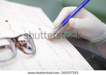 ECG and glasses concept of medical analysis - stock photo