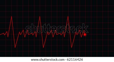 ECG Electrocardiogram. - stock photo