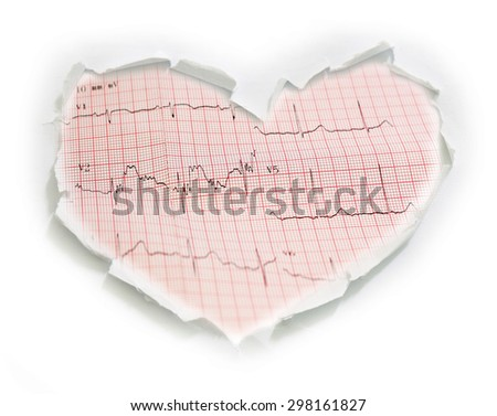 Ecg graph, electrocardiogram ecg  on Hole paper heart shape - stock photo
