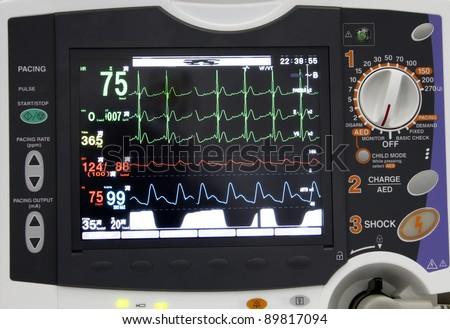 ECG monitor display - stock photo