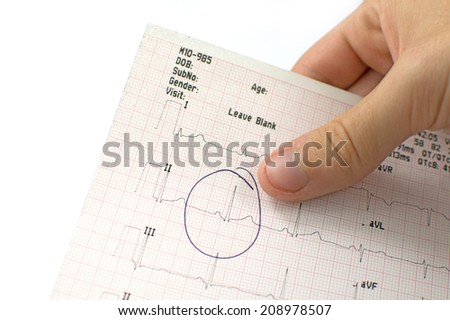 ECG report held in hand  - stock photo
