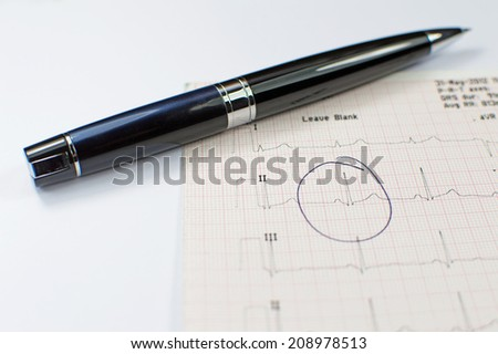 ECG report on table accompanied by a black pen - stock photo