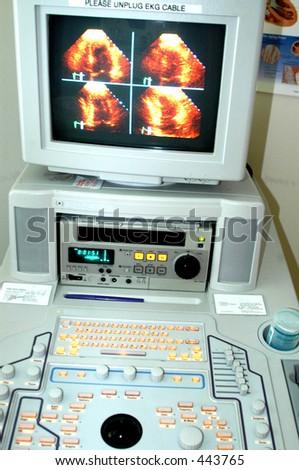 echo cardio machine heart monitor - stock photo
