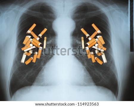 Effects of cigarette smoking - lung cancer. - stock photo
