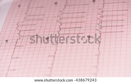 EKG tells of the life and work of the heart - stock photo