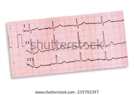 Electrocardiogram - stock photo