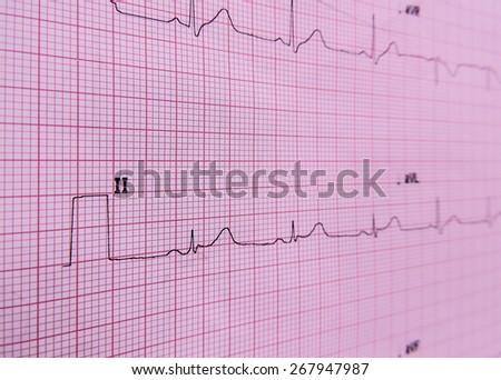 Electrocardiogram close-up - stock photo
