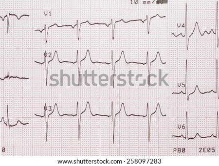Electrocardiogram, ECG printout, EKG background - stock photo