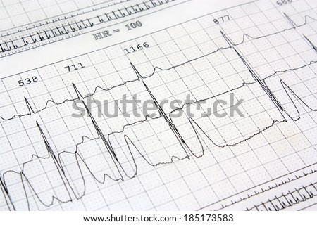 Electrocardiogram ekg heart rhythm background - stock photo