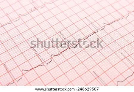 Electrocardiogram graph ekg heart rhythm, medicine concept - stock photo
